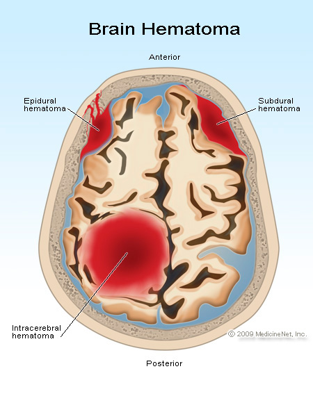 Intracerebral-haematoma-after-trauma
