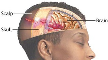 Traumatic Brain Injury New Treatment